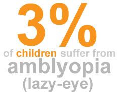 lazy eye, amblyopia statistic